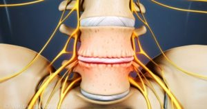 Treating Degenerative Disc Disease With Chiropractic Care